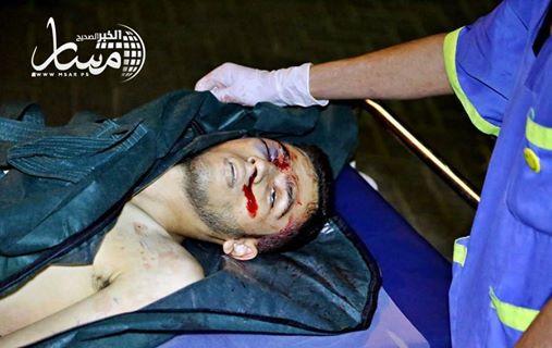 Le visage du martyr Anas Qandeel