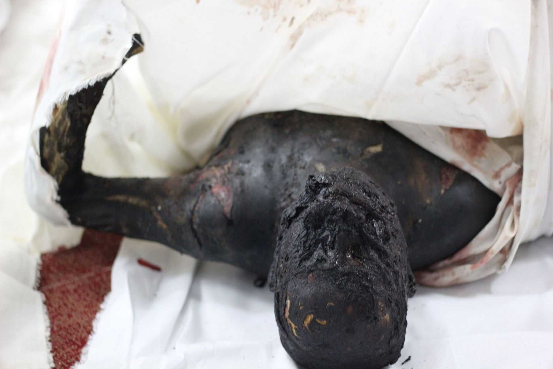 Burned_dead_body_in_RABIA_Massacre